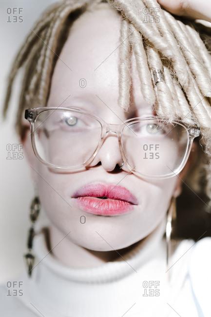 Headshot of an albino woman looking at the camera