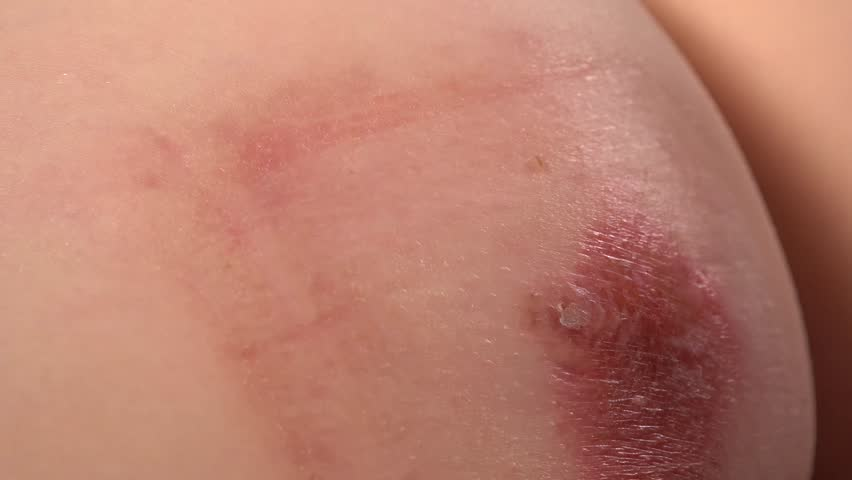 Close-up of doctor examining skin inflammation and abcess | Shutterstock HD Video #1006815886
