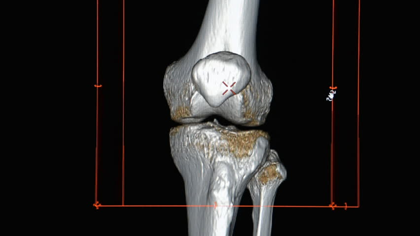 CT Knee or CT Scan image of left knee  3d rendering image rotating on monitor.