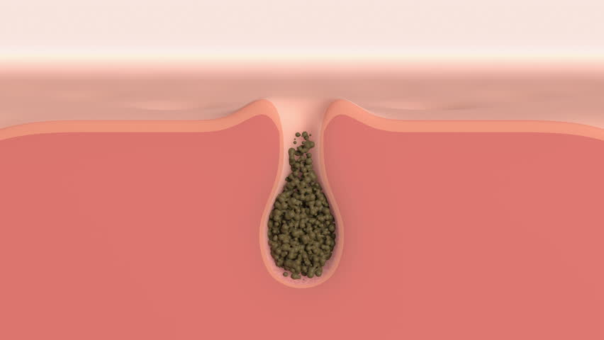 3D animation of a skin pore cleaning demo