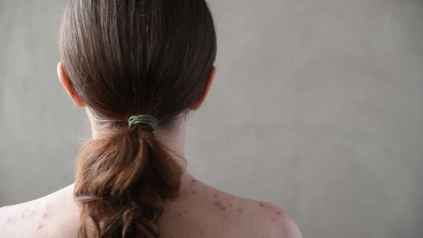 Beautiful young brunette girl with pimples and acne on her back and face | Shutterstock HD Video #1010286023