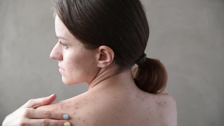 Beautiful young brunette girl with pimples and acne on her back and face | Shutterstock HD Video #1010286032