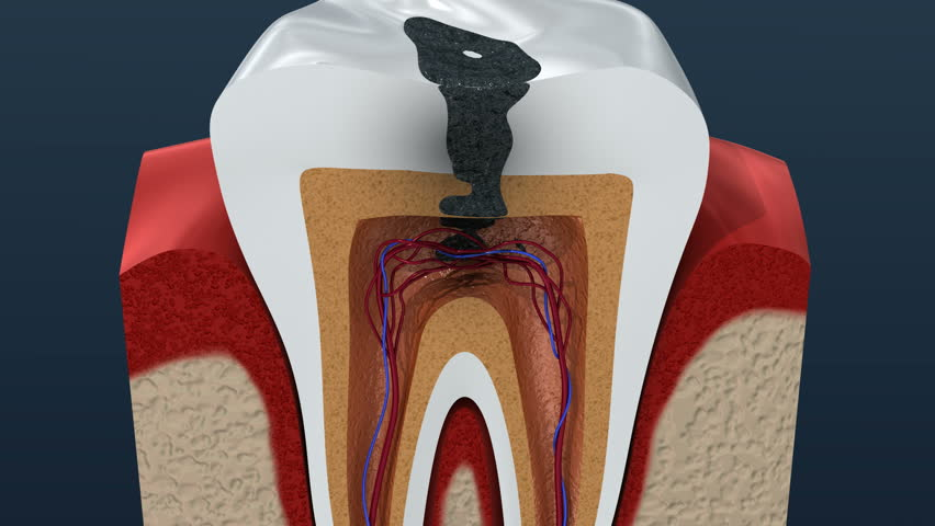 Root canal infection process. 3D Animation.