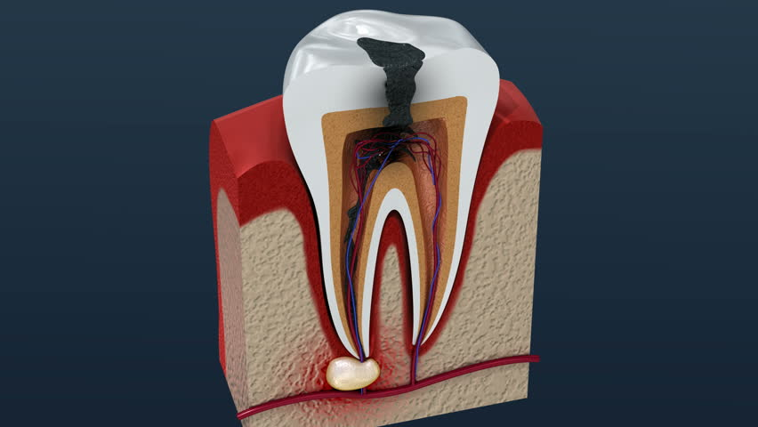 Root canal treatment process. 3D Animation.