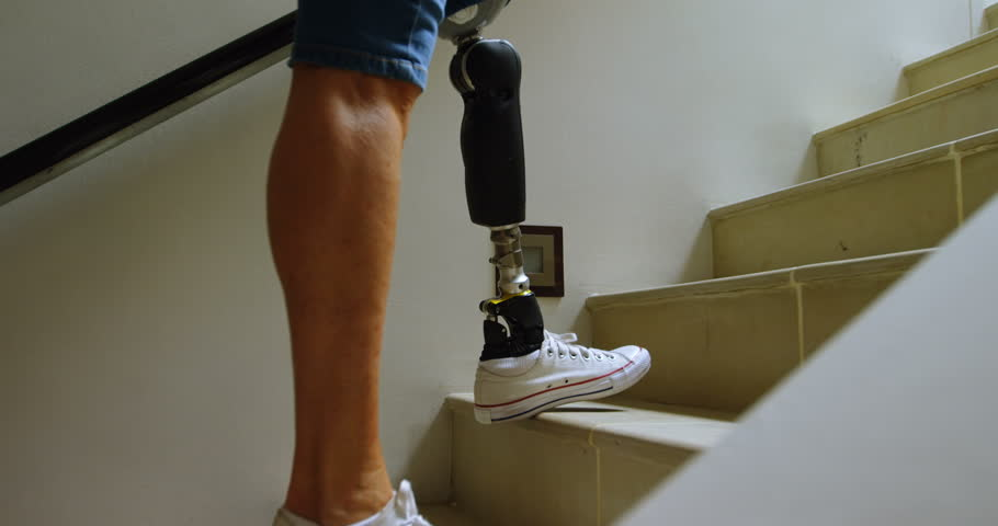 Disabled woman with prosthetic leg moving upstairs at home 4k