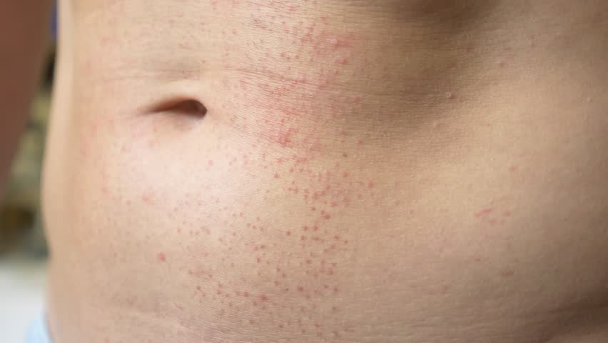 4k, a man with a naked torso scratches a red rash on his stomach. Slow motion | Shutterstock HD Video #1012669598