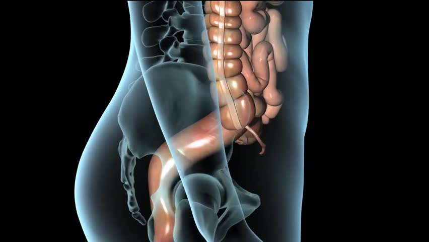 Hemorrhoids (HEM-uh-roids), also called piles, are swollen veins in your anus and lower rectum, similar to varicose veins.