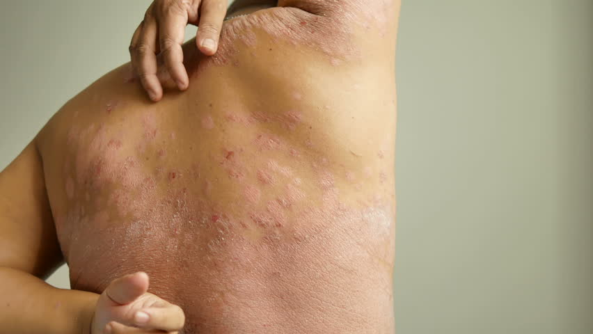 Men is their hands to scratch the wound. Diseases caused by abnormalities of the lymph. Psoriasis is a skin disease. | Shutterstock HD Video #1013778809