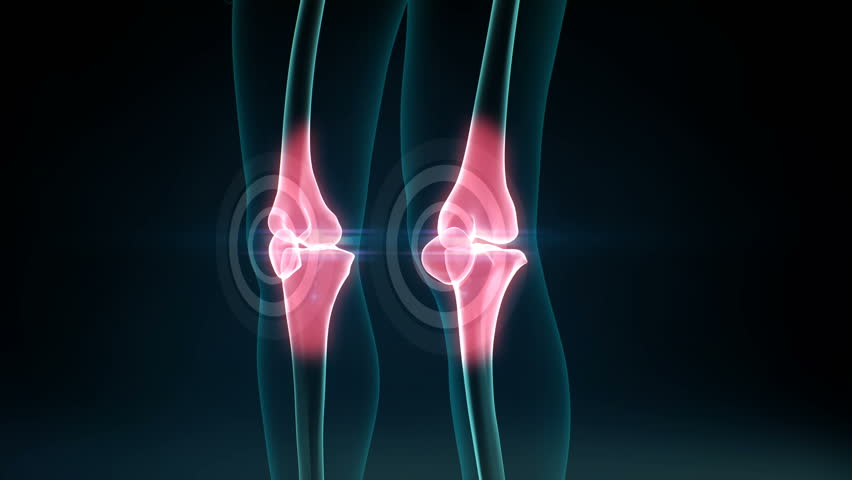 Arthritis of pain Knee. Healthy joint and unhealthy painful joint with osteoarthritis. 4k animation.2.