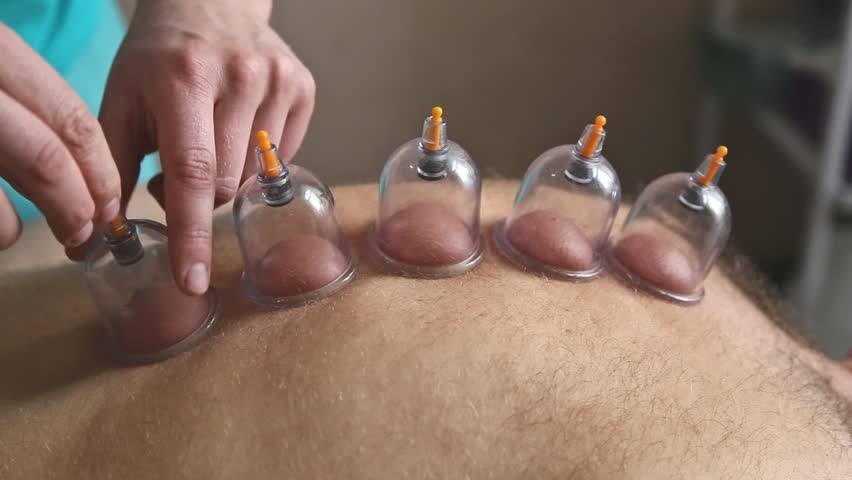 Therapist giving vacuum cupping therapy to man's back in the clinic   Shutterstock HD Video #1016043691