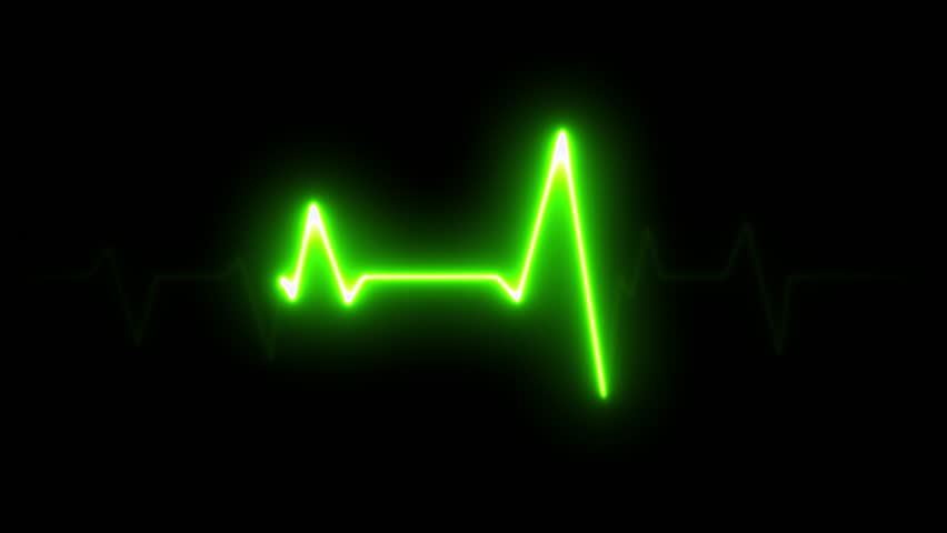 4k Electric Heart Pulsation Wave Signal/ Animation of a health technology background with green sine wave of heart pulsation signal Royalty-Free Stock Footage #1016335930