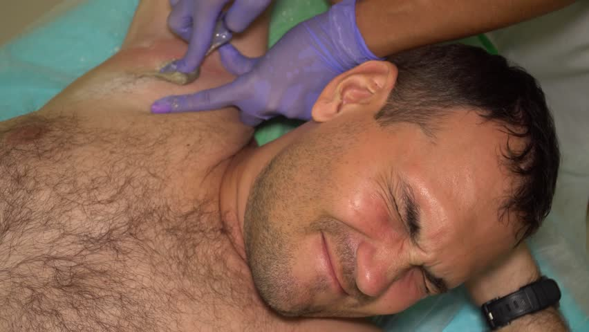 Caucasian Man Suffering from Pain while Beautician in Gloves Epilating His Armpit with Sugaring. Male Beauty Treatment