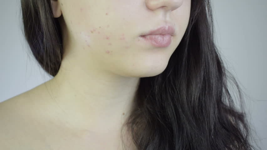 A brunette girl looks at her face. Her cheeks are covered with red acne. Red rash. Close up HD Royalty-Free Stock Footage #1017963085