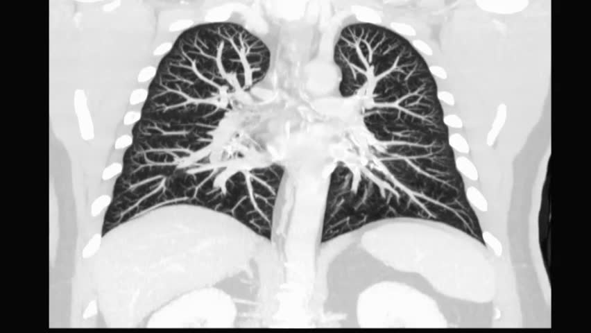 CT Chest or CT Scan of  Lung f Coronal MIP View for diagnosis TB,tuberculosis and coronavirus or covid-19 .  Royalty-Free Stock Footage #1018886314
