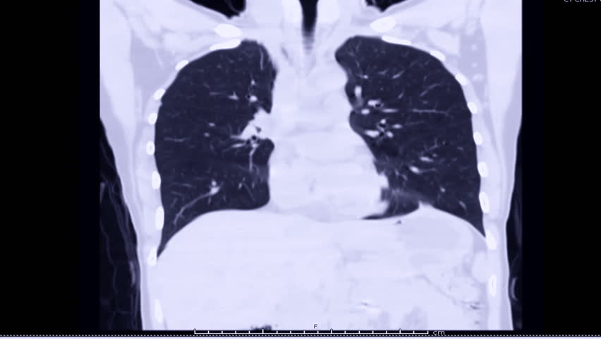 CT Chest Lung window Coronal view. Royalty-Free Stock Footage #1019952757