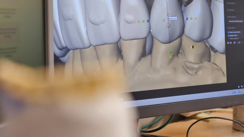 3D model used for smile restoration   Shutterstock HD Video #1021566940