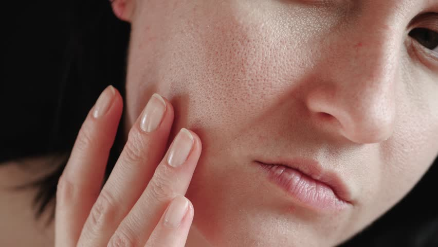 Close-up of a woman's face. The girl touches the fingers of problem skin with enlarged pores, examining it. The concept of caring for problem skin, aging, environmental effects on the skin.