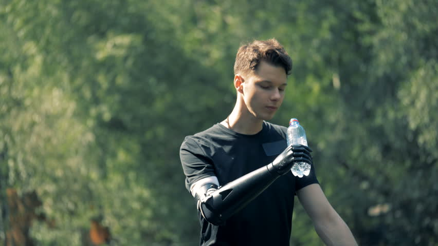 Prosthetic hand holding a bottle. Human with a robot arm.