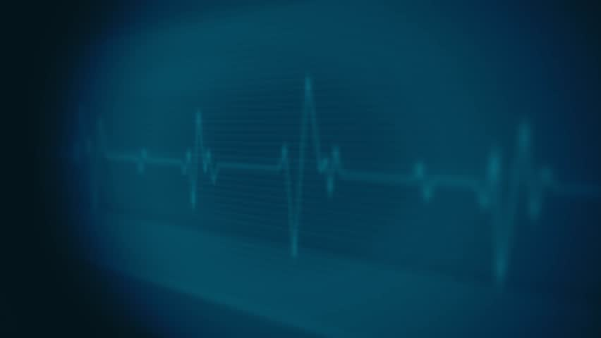 4k Medical Heart Pulsation Wave Signal/ Animation of a health technology background with red sine wave of heart pulsation signal Royalty-Free Stock Footage #1023633358