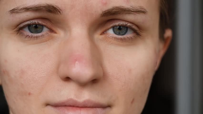 Beautiful girl with not smooth skin crushes red acne on her face | Shutterstock HD Video #1025359739