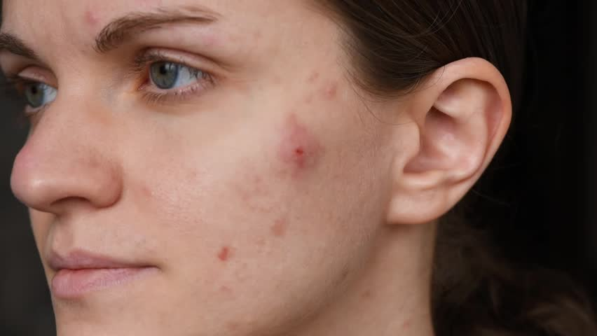 Beautiful girl with not smooth skin crushes red acne on her face | Shutterstock HD Video #1025359745