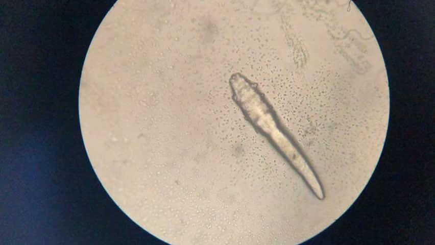 Mite in microscope | Shutterstock HD Video #1025652428