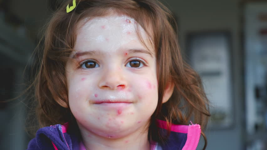 Chicken pox varicella disease of child face portrait . | Shutterstock HD Video #1025877290