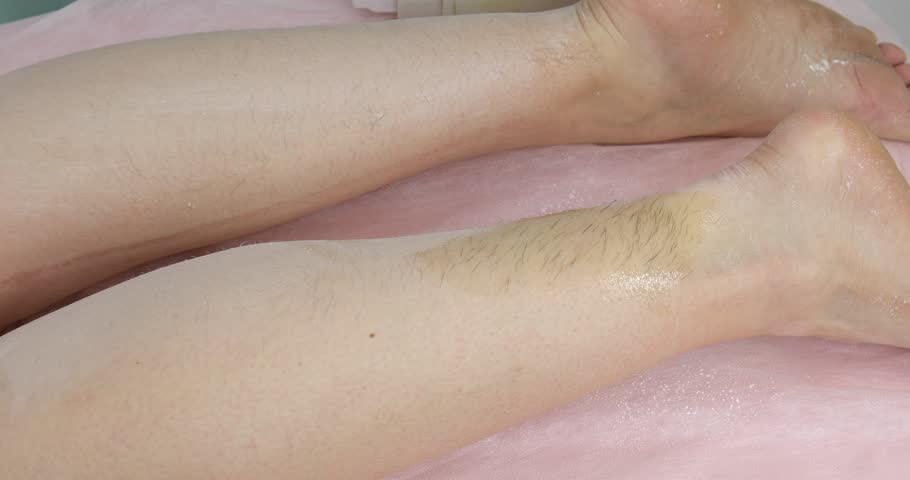 Woman having waxing - hair removal depilation procedure on leg with wax depilatory in beauty salon | Shutterstock HD Video #1026158843