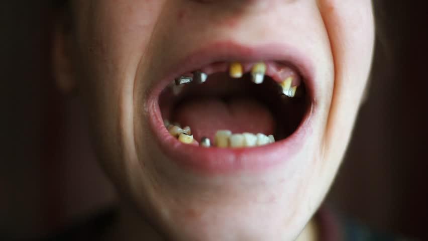 Girl teeth hot bad 11 Mistakes