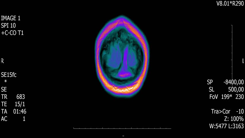 Real life man brain mri scan with tumor neoplasm medical reseach new quality health science 4k footage stock animation screen .
