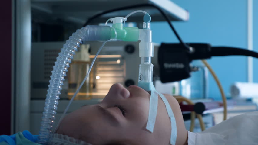 Artificial respiration tube inserted into patient's throat Royalty-Free Stock Footage #1028619389