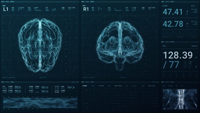 A high tech screen displays a brain in 3D and monitors its vital signs with statistical data for a neurology department