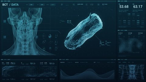 Medical technology screen of a human skull and 3D scan of bacteria with data as it monitors the patient's status