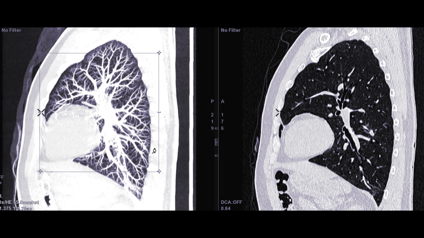 CTA Chest with contrast media comparison Sagittal MIP and sagittal 2D for diagnostic Pulmonary embolism (PE) and lung cancer . Royalty-Free Stock Footage #1029930215