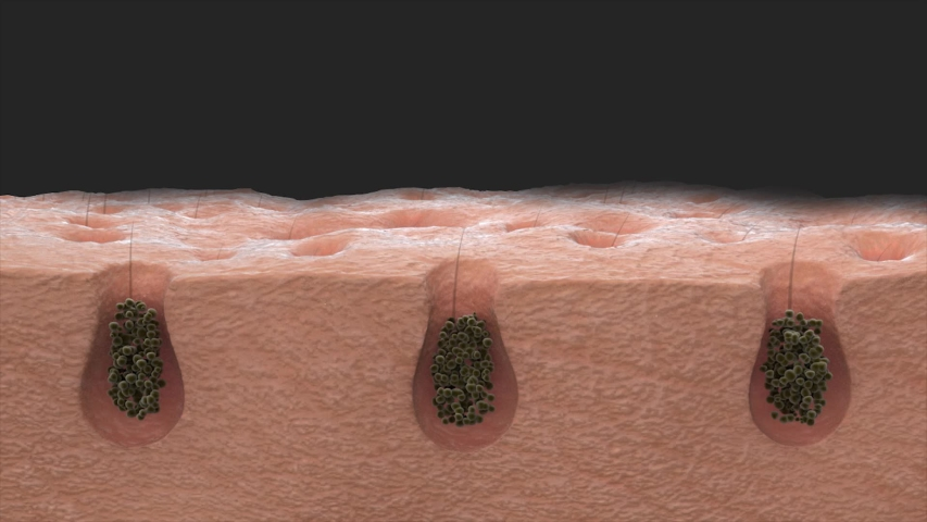 3D animation close-up skin dirt removal. Deep cleansing skin. Skin pores. Acne cleansing. skin pore cleaning