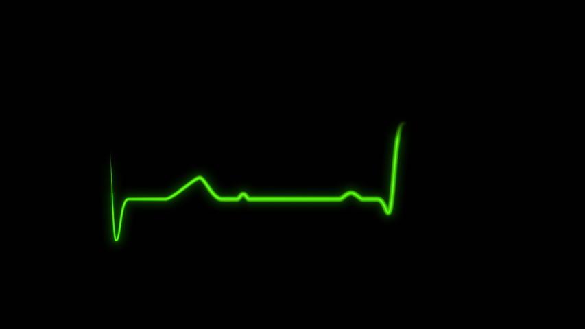 Cardiogram EKG ECG signal. Heart beat wave, pulse rhythm   Shutterstock HD Video #1031641874