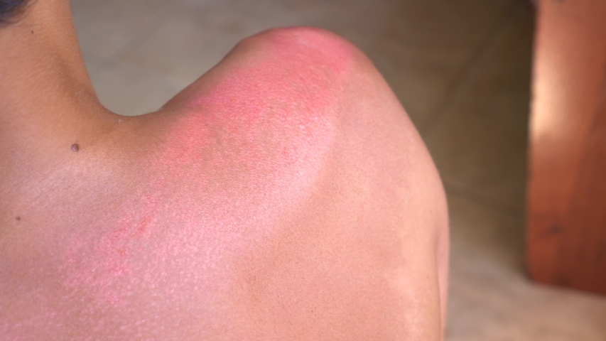 Sunburn signs and symptoms: Pinkness or redness, blisters, swelling, peeling the top layer of damaged skin | Shutterstock HD Video #1031646161