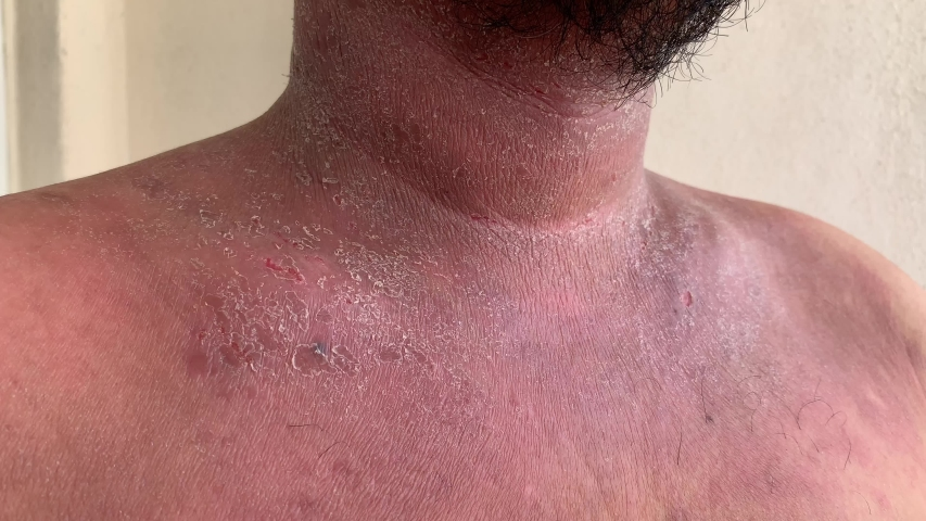 Close up shot of dermatitis patient upper chest and neck area with dry flaky rash skin  | Shutterstock HD Video #1032260834