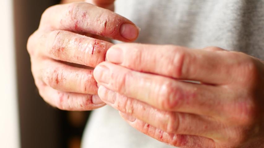 pikkelysömör népi gyógymódok a fejbőrt vörös foltok a lábszárán a kezelés
