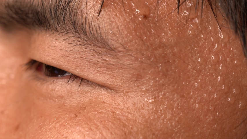 This close up macro video shows a nervous asian man's sweating skin. | Shutterstock HD Video #1032616226