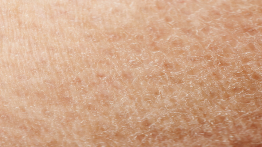 Hydration process of dark, dull, flaky skin to completely healthy skin