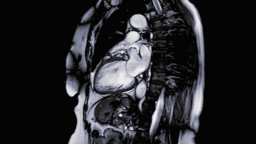 MRI heart or Cardiac MRI ( magnetic resonance imaging ) of heart in Vertical long axis view showing heart working for detecting heart disease.
