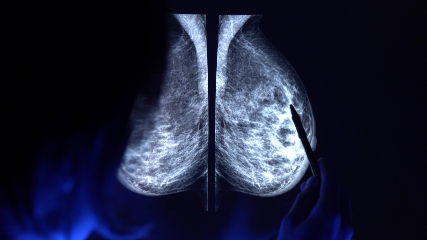 Doctor with a pan checking mammogram x-ray. Mammography diagnostic to prevent breast cancer. 4k close up video.   Shutterstock HD Video #1033135922