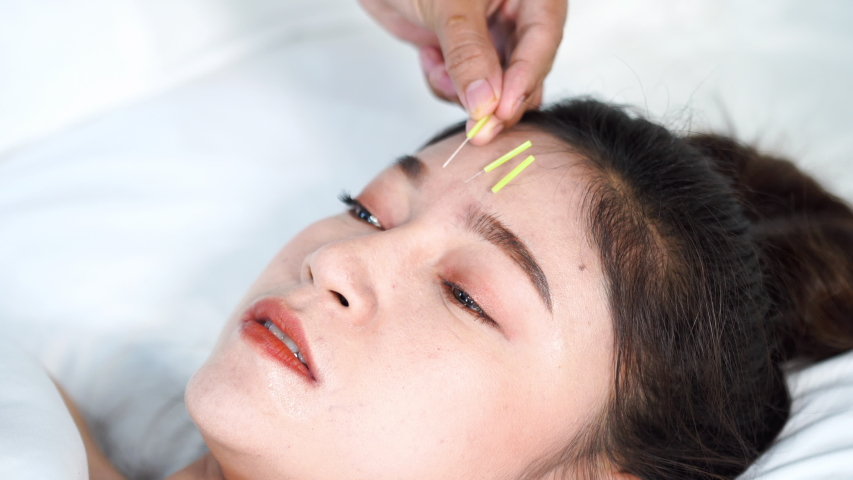 young woman undergoing acupuncture treatment on head