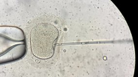 Closeup view through the microscope at process of the in vitro fertilization of a female egg inside IVF dish in the laboratory. Video recording.