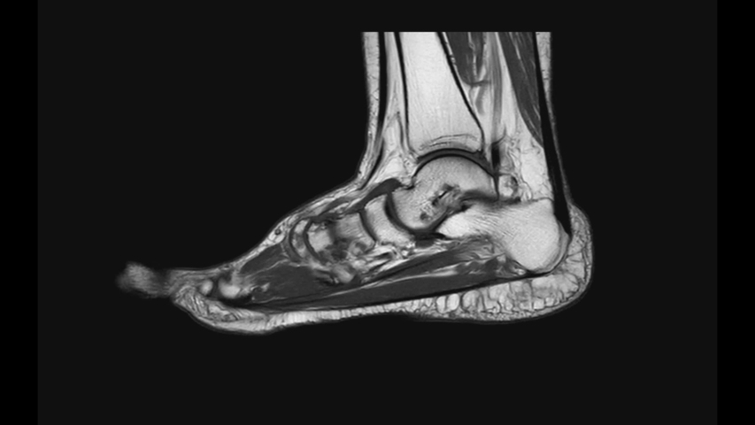 MRI FOOT Sagittal T2  for diagnostic tendon injury.