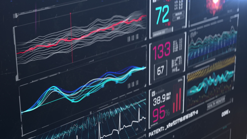 Medical ICU monitor with abnormal activity, arrhythmia, vital signs monitoring. Medicine, health care, critical care | Shutterstock HD Video #1037656571