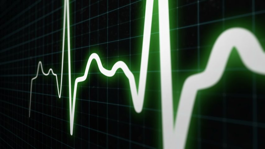 Heartbeat monitor line, seamlessly loop animation, white line graph of heart rhythm on medical screen with grid. ECG, EKG electrocardiogram shows heartthrob. More colors and options in my portfolio