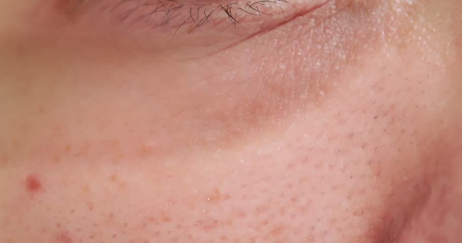 Close up of asian woman with dark circle under eyes   Shutterstock HD Video #1038347180