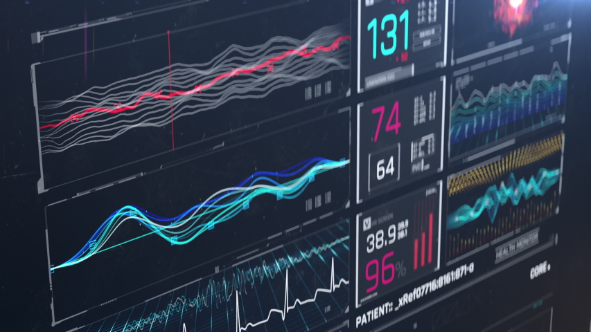 Patient dying, heart failure, pulse disappearing on ICU monitor screen, death. Medicine, health care, critical care | Shutterstock HD Video #1038438428